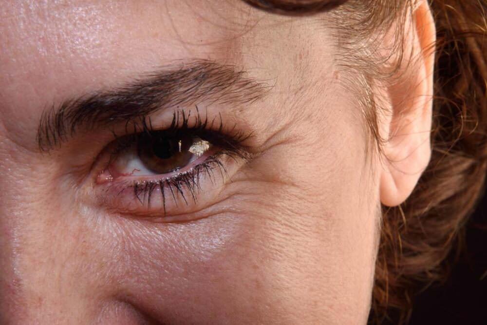 göz altı kremi